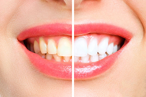 Blanqueaminto Dental